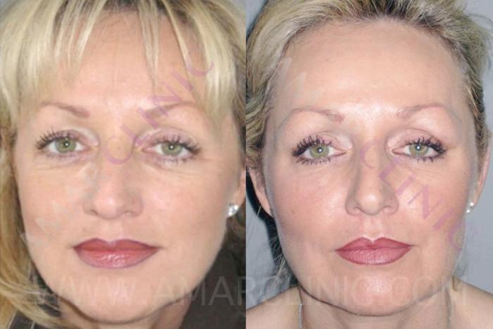 Non Surgical Face Lift Fami Dr Roger Amar