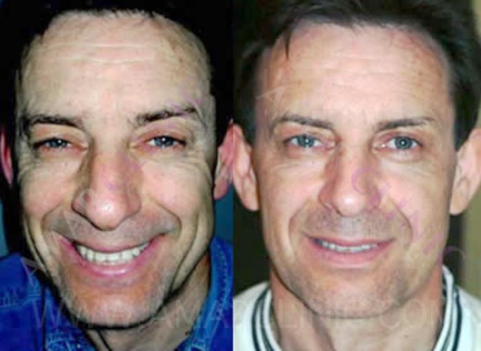 Rejuvenecimiento Facial Hombre Fami Doctor Roger Amar