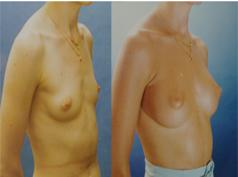Augmentation Mammoplasty