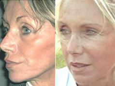 FAMI to correct the consequences of a facelift