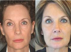 FAMI to correct facial sagging