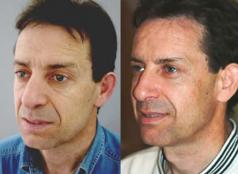 Facial rejuvenation in men with FAMI