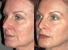Lifting Facial con Celulas Madre Adultas FAMI2