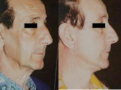 Man Facelift