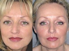 FAMI for shaping facial contours