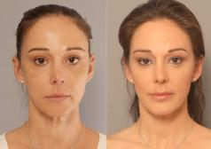 Non surgical facelift with adult stemcells