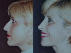 Rinoplastia Nose Cosmetic Surgery
