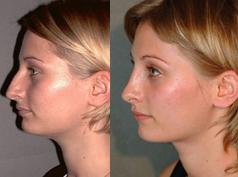 Rinoplastia Nose Operation