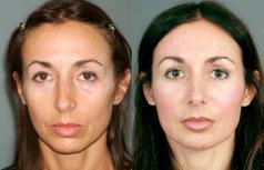 Rejuvenecimiento Facial Sin Cirugia FAMI