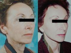 Lifting Facial Woman Face Lift