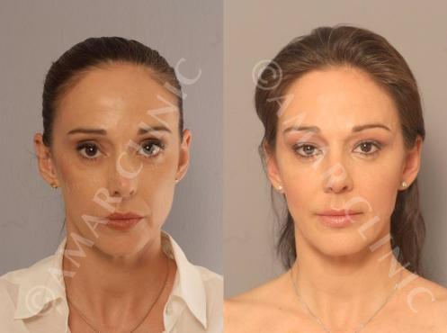 Antes y Después Lifting sin Cirugía