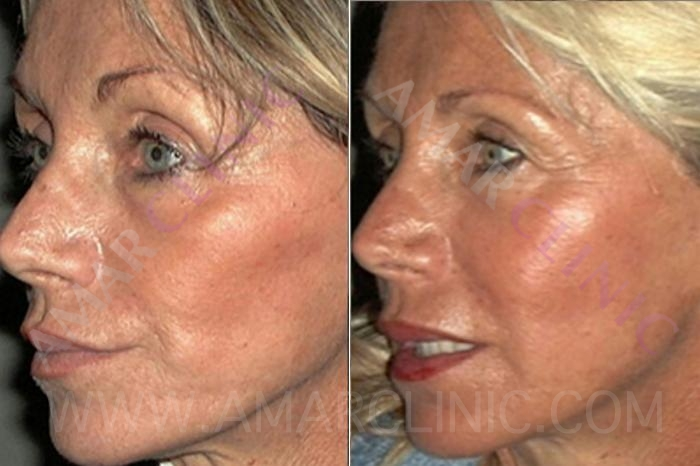stem cell facelift case