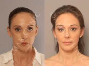 Non-surgical-face-lift