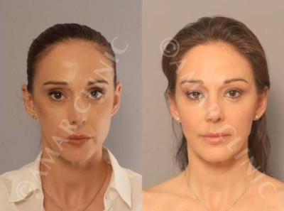 FAMI facelift stem cell LONDON