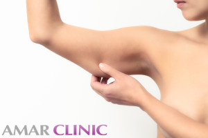 arm-liposuction-marbella