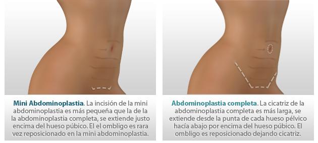 Abdominoplasty Marbella