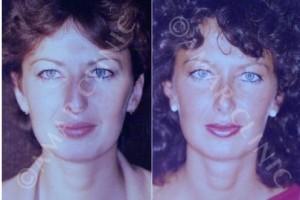 resultados-rinoplastia-mas-de-30-años