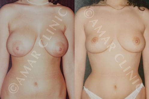 Mamoplasty breast reduction marbella