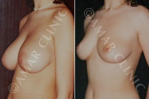 Breast reduction mamoplasty marbella