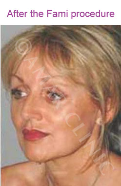 fami non surgical facelift photo after Amar clinic