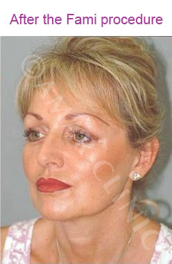 fami non surgical facelift photo after  London