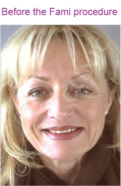 fami non surgical facelift photo before 2