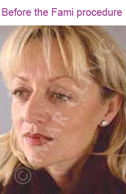 fami non surgical facelift photo before Amar clinic