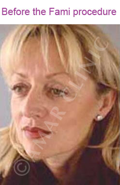 fami non surgical facelift photo before  London