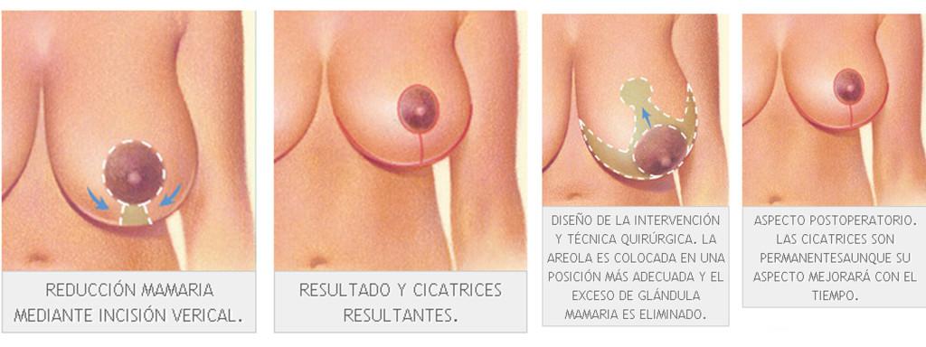 mamoplasty-malaga